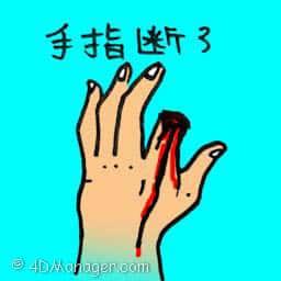手指断了 severed finger